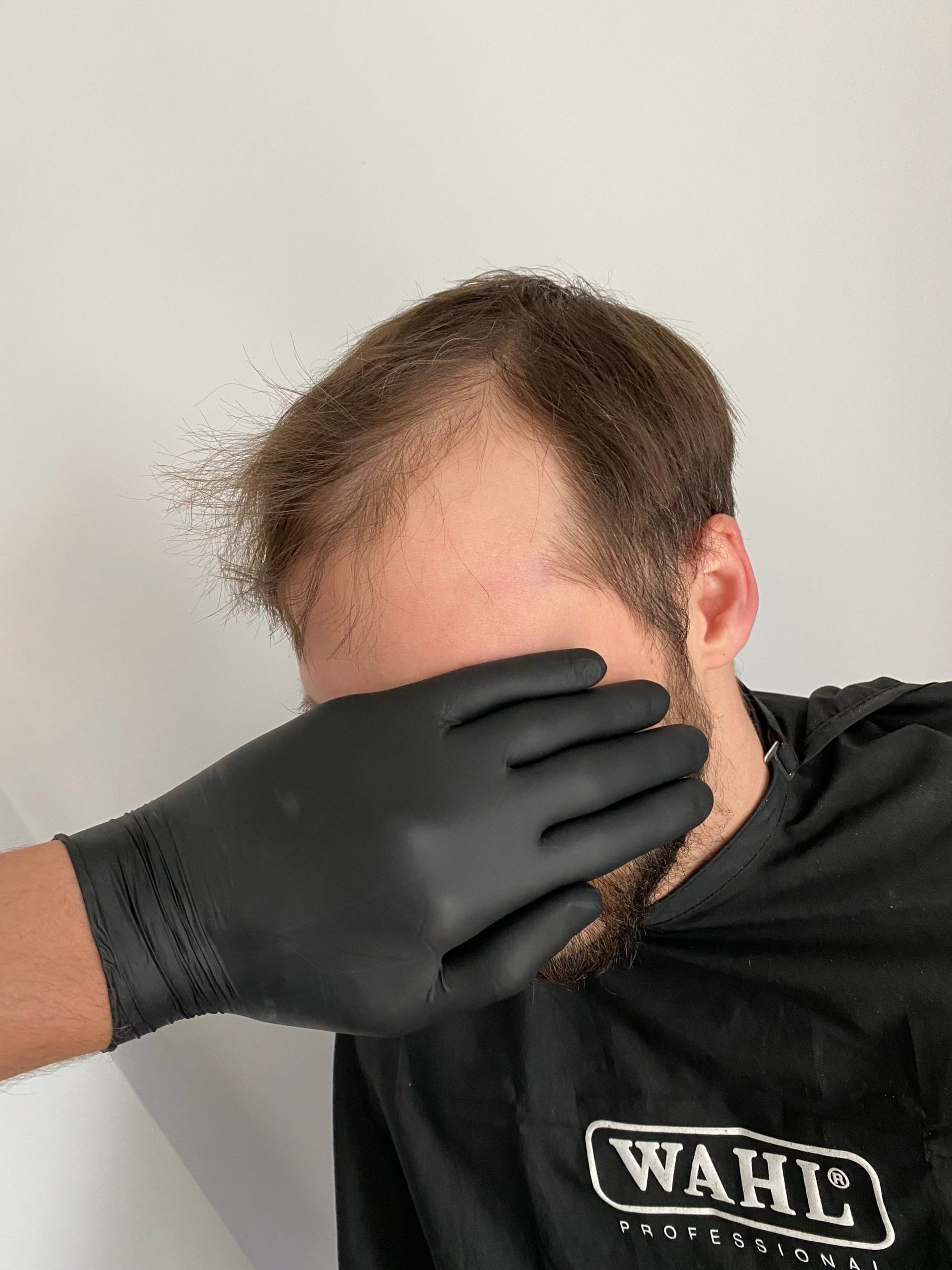 A TikToker inspires bald men to try hairpieces because it 'makes a difference in somebody's self-confidence'